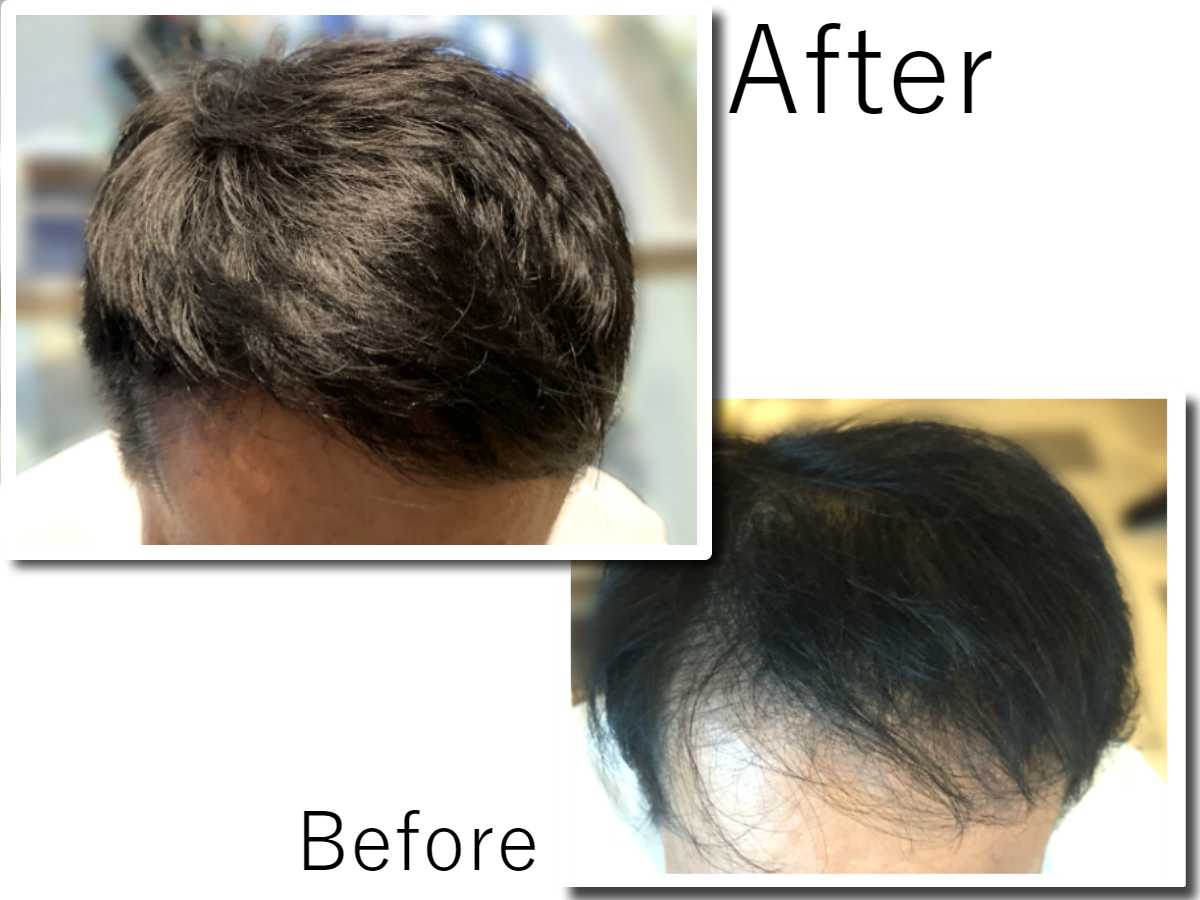 Hair rejuvenation case studies before and after