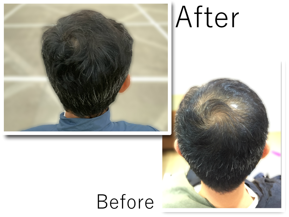 Hair rejuvenation case studies before and after 1